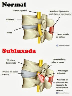 Desalinhamento da Coluna Vertebral ou subluxações - Subluxação vertebral