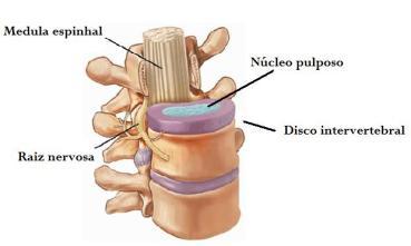 vertebra e disco intervertebral