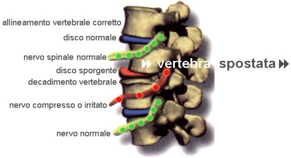 sublussazione-vertebrale