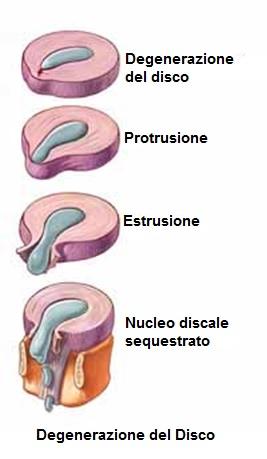 Degenerazione del disco e il trattamento di chiropratica.